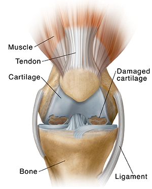 Front view of knee showing osteoarthritis.