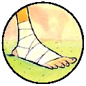 Illustration of a foot wrapped in bandage.